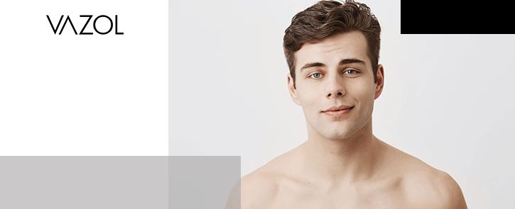 Vazol-Como-prevenir-la-piel-brillante-en-el-rostro-Banner